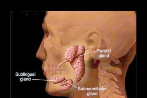 Las paperas es una enfermedad que visiblemente afecta a las glándulas salivales, provocando que la cara de una persona se hinche generando altas fiebres