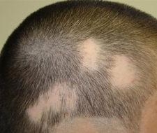 Instituto Médico Dermatológico, una solución a la alopecia