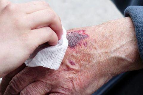 Herida Crónica