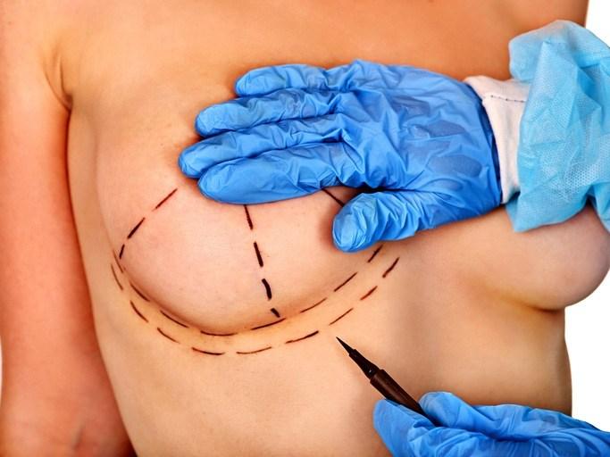 Cirugia mamaria aumento pechos