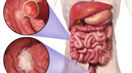 Sangre en las heces o heces alquitranosas: causas y tratamiento