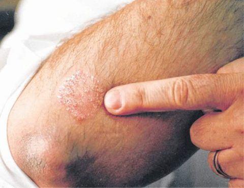 efectos-secundarios-de-los-medicamentos-antimicoticos-candidiasis-hombre-curar-los-hongos