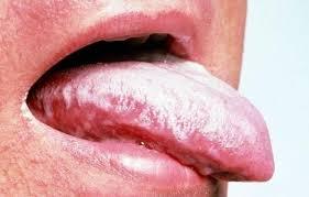efectos-secundarios-de-los-medicamentos-antimicoticos-candidiasis-lengua.infocandidiasis