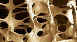 Las controversias de la osteoporosis