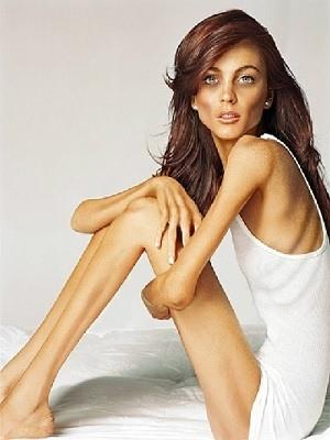 Fotos de mujeres enfermas de bulimia 48