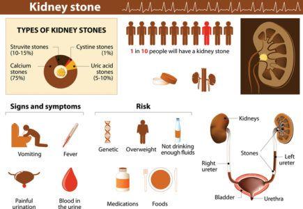 Tratamientos para las piedras en el rinon extraccion natural