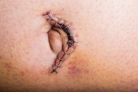 Causas de la eventracion mala cicatrizacion