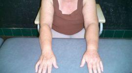 Linfedema, problema posterior al cáncer de mamas