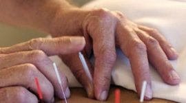 Deja de fumar con acupuntura