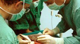El rechazo de órganos trasplantados