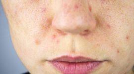 ¿Qué es el Melasma? Causas y tratamientos