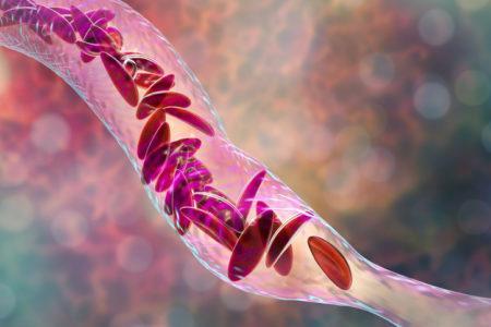 Enfermedades hereditarias cuales son y por que suceden anemia falciforme