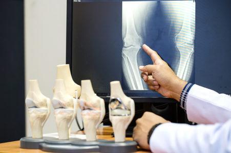 Osteoporosis que es diagnostico tratamiento columna